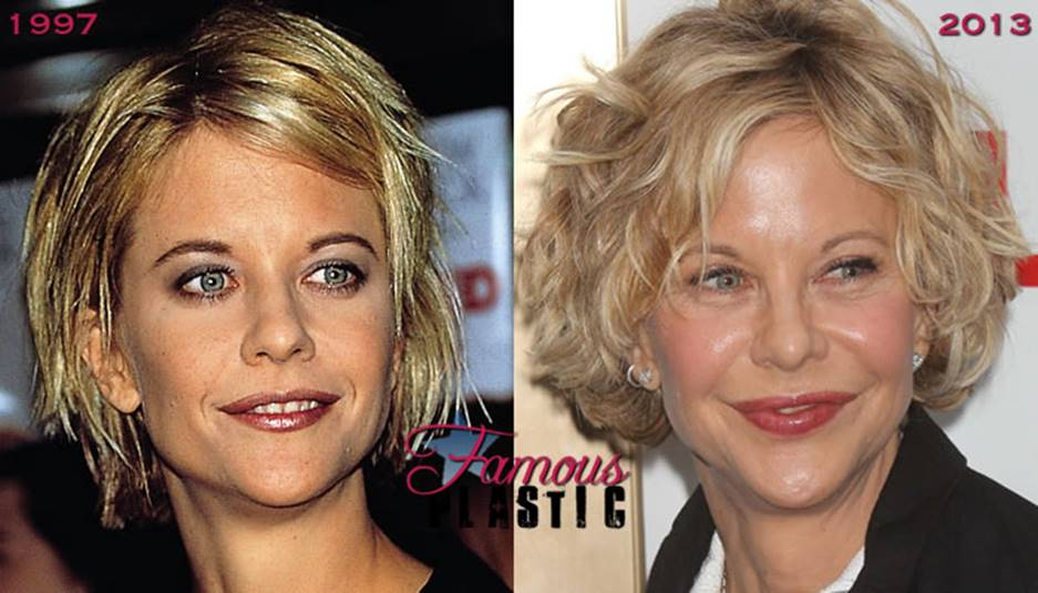 Meg Ryan S Before And After Plastic Surgery Photos Should